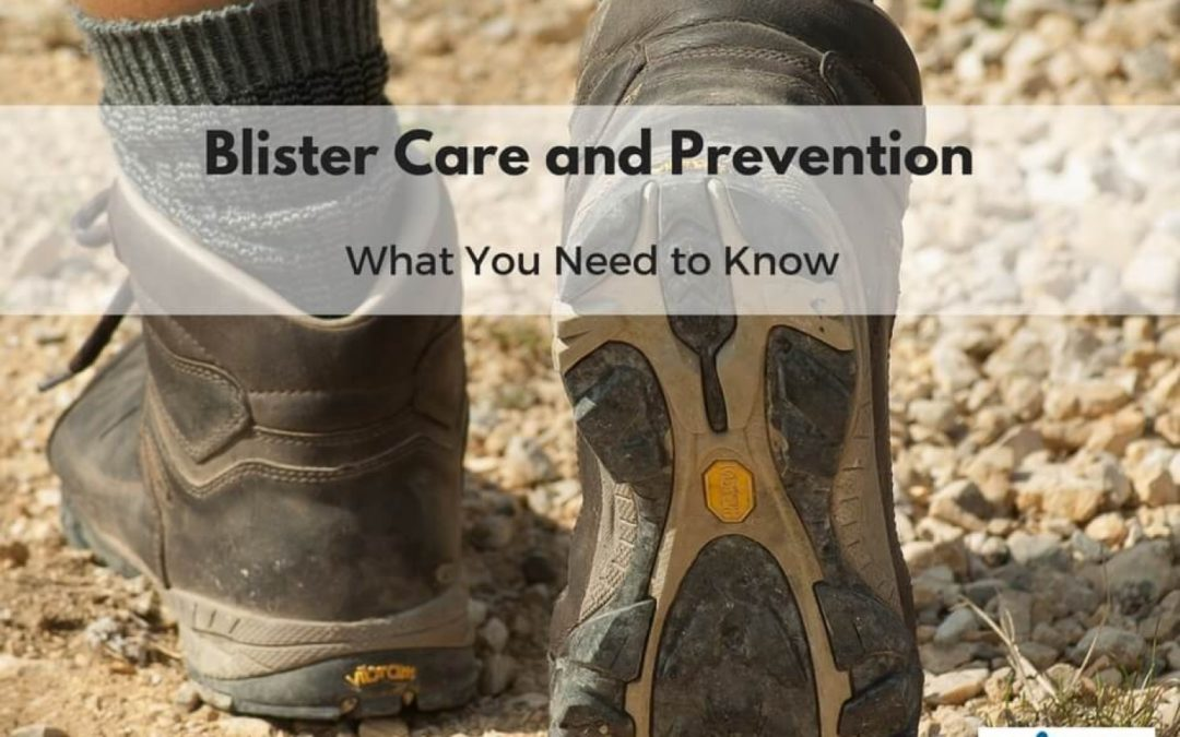 Blister Care and Prevention, What You Need to Know
