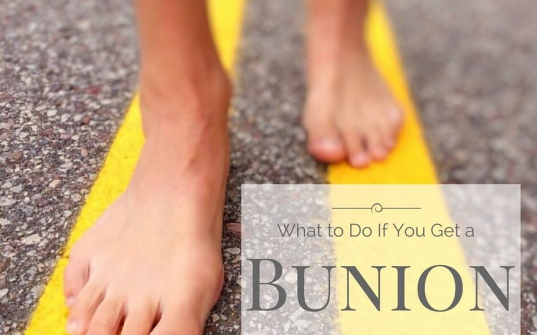 What to Do If You Get a Bunion