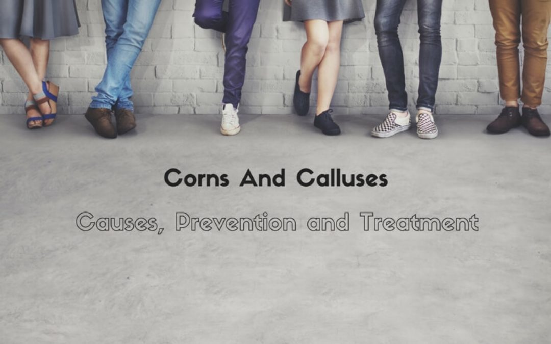 Corns And Calluses: Causes, Prevention and Treatment