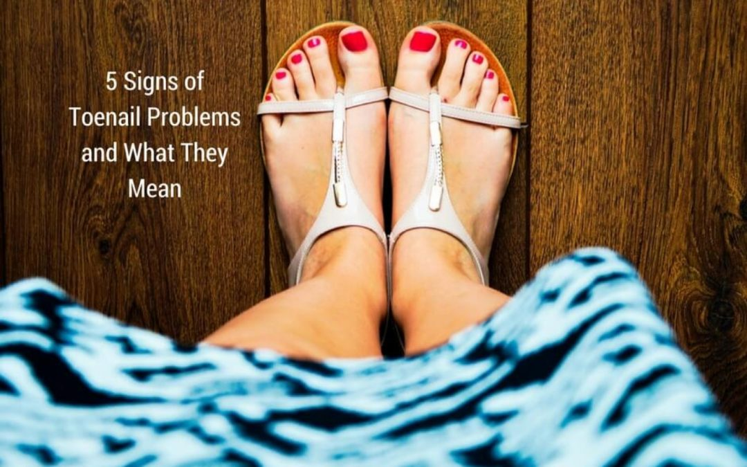 5 Signs of Toenail Problems and What They Mean