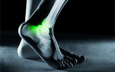 Make Time for Ankle Strengthening Exercises