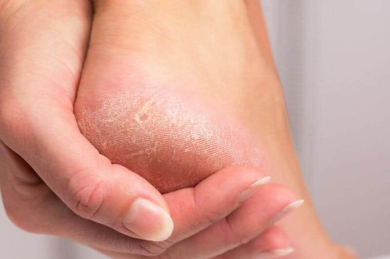 How Hyperkeratosis Can Affect Your Feet