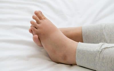 Why Do Your Feet and Ankles Swell?